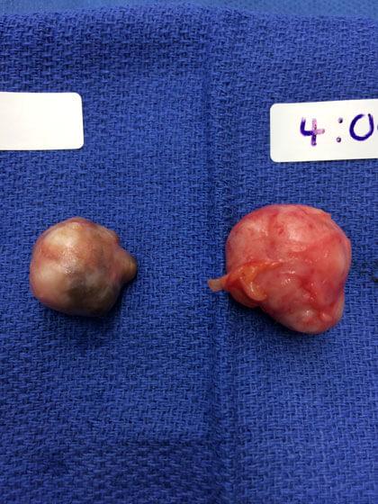 benign cancer fibroadenoma